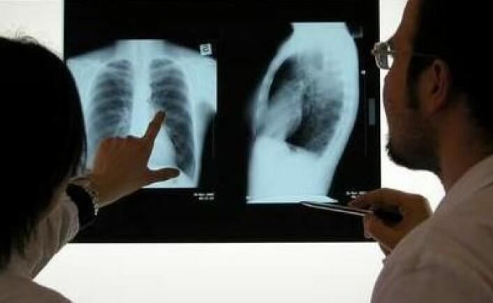 Hvert år dør ca 2000 nordmenn av lungekreft. Det er den vanligste kreftformen i verden. Foto: Shutterstock