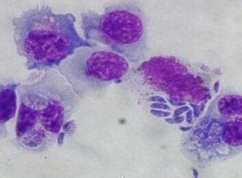 Natural Killer celler fra storfe infisert med tachyzoitter fra Neospora caninum. (Foto: Anne Storset)