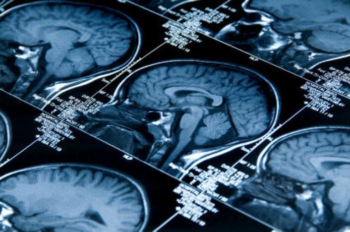 MRI av en hjerne. Hvor plastisk er den etter at den har blitt voksen?(Illustrasjonsfoto: iStockphoto)