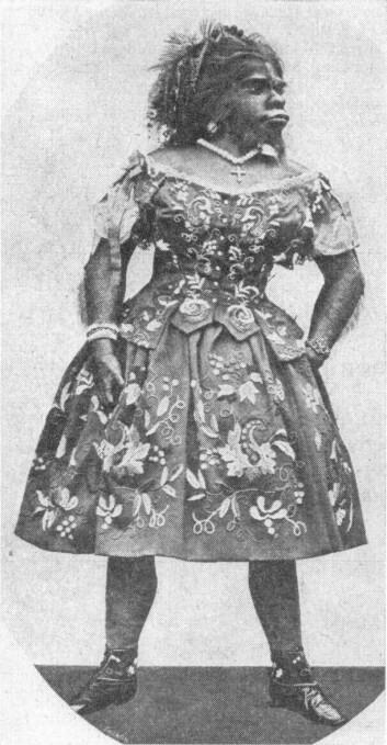 Kinesiske forskere er på sporet av de genetiske årsakene til hypertrikose som fører til ekstrem hårvekst. Meksikanske Julia Pastrana ble en sensasjon da hun opptrådte på sirkus i Europa. Hun døde i Moskva i 1860 etter en barnefødsel. (Foto: Wikimedia Commons)