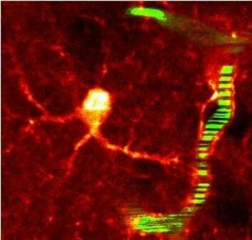 Ved hjelp av to-foton lasermikroskopi er det mulig å studere vannkanalenes funksjon i den intakte hjerne. Her sees en gliacelle og en liten blodåre. (Foto: E. A. Nagelhus)