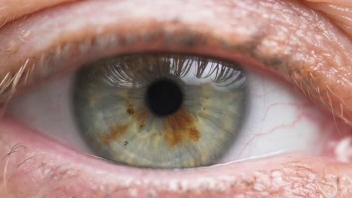 Regnbuehinnen, eller iris, er den fargede delen av øyet hos virveldyr, inkludert mennesker. (Foto: YAY micro)