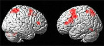 Dysleksi forbindes vanligvis med lese- og skrivevansker. Nå viser UiB-forskning at dyslektikere har svikt i arbeidsminnet. De røde feltene viser området for arbeidsminne. (Foto: UiB)