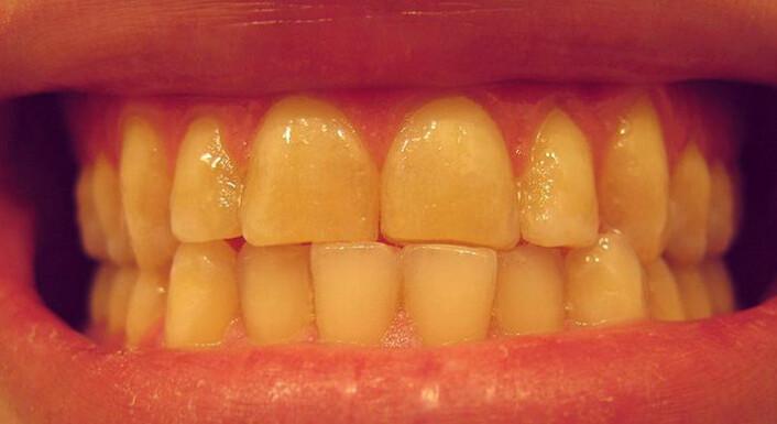 Det kan få uheldige konsekvenser når skjærer tenner. Forskere har nå observert at det framkaller stor hjerneaktivitet i våken tilstand og håper den nye kunnskapen kan brukes til hjelpe folk med den dårlige vanen. (Foto: Wikimedia Commons)