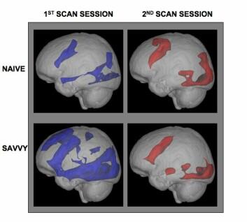 Hjernen til nybegynnere i nettsøk og surf (øverst) og de mer erfarne (nederst). Bildene viser hvordan mønstre i hjerneaktivitet endret seg fra første hjerneskanning (venstre), og til den andre skanningen (høyre) der uerfarne i mellomtiden hadde øvd seg i nettbruk hjemme i to uker. Etter andre skanning hadde både noviser og de drevne mønstre som lignet på hverandre. (Foto: UCLA)