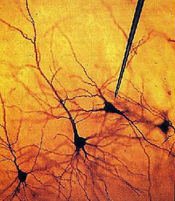 En elektrode maåler aktivitet fra et nevron (hjernecelle).