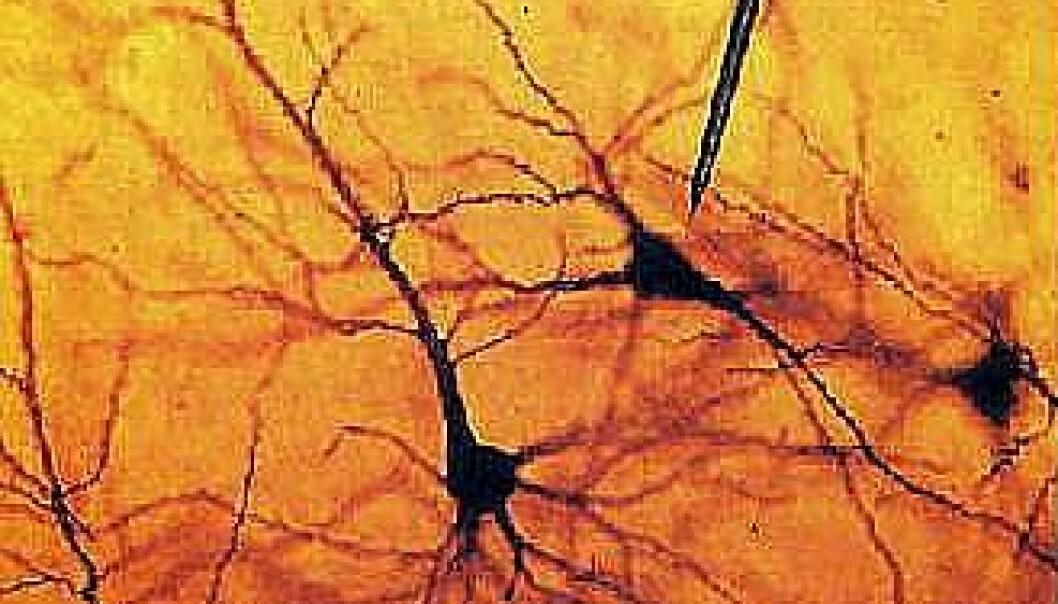 En elektrode måler aktivitet fra et nevron (hjernecelle). (Foto:UMB)