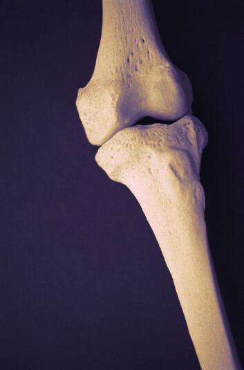 """""""Hver tredje kvinne i Norge over 50 år utvikler osteoporose (beinskjørhet). Menn har i utgangspunktet kraftigere beinstruktur og blir ikke rammet av osteoporose i like stor grad som kvinner. Illustrasjonsfoto."""""""