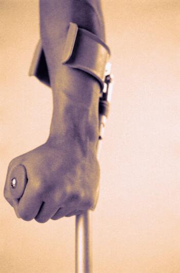 """""""Hvert 30. minutt brekker en lårhals eller et håndledd i Norge, ifølge Norsk Osteoporoseforening. Men ikke alle disse bruddene er relatert til beinskjørhet. Den som får beinskjørhet brekker særlig lett armene, ryggvirvlene eller lårhalsen. Illustrasjonsfoto."""""""