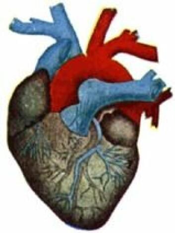 """""""Hjertet skades av forurenset luft, både direkte og indirekte, i følge amerikanske forskere. Dårligere pumpefunksjon og endret hjertertyme kan være noen av følgene."""""""