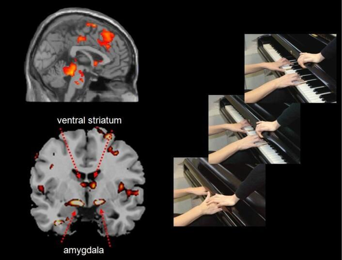 Når ungdom med aggressiv atferdslidelse så noen som påførte en annen smerte med vilje, for eksempel ved å smelle pianolokket over fingrene, aktiverte det hjerneregioner som behandler smerteinformasjon, samtidig som det aktiverte amygdala og ventral striatum - en del av nervekretsen som er involvert i belønning. Forskerne mener derfor at disse ungdommene ser ut til å nyte å se andre i smerte. (Illustrasjon: Decety/Lahey/Michaslska/Akitsuki)