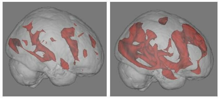 Resultatene kommer til syne ved hjelp av hjerneskanning med FMRI. Bildet til høyre viser hvordan nettsøk setter store nervekretser i arbeid. Til venstre ser vi at hjerneaktiviteten er lavere mens en person leser en bok. Foto: University of California.