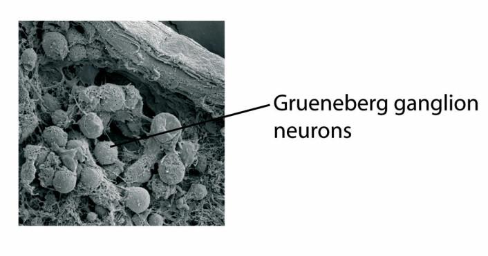 """""""Slik ser cellene i Gruenebergs ganglion ut gjennom elektronmikroskop. (Illustrasjon: Science/AAAS)"""""""