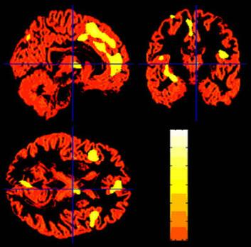 """""""Hjerneområder som har mindre volum av grå materie, blant de som var i nærheten av terrorangrepet. Alle områdene, som er lyse i fargen på dette bildet, henger sammen med behandling av følelser. (Foto:Barbara Ganzel/Cornell University)"""""""
