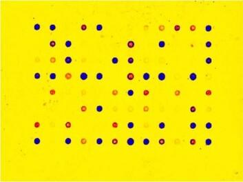Tarmbakterieprofil: Bakteriene som blir identifisert vises som lysende punkter på en plate.