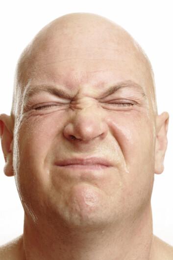 """""""De fleste rynker på nesen når håret forsvinner. Den vanligste formen for håravfall er arvelig, men også luftofurensning kan spille inn, ifølge den nye studien."""""""