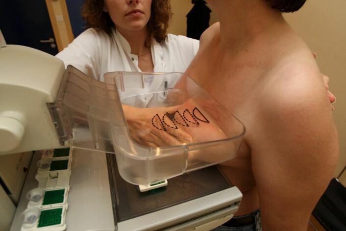 """""""Studien viser at kvinner som viser tidlige tegn på diabetes 2 er i faresonen for å få alvorlige former for brystkreft. (Illustrasjonsfoto: www.colourbox.com)"""""""