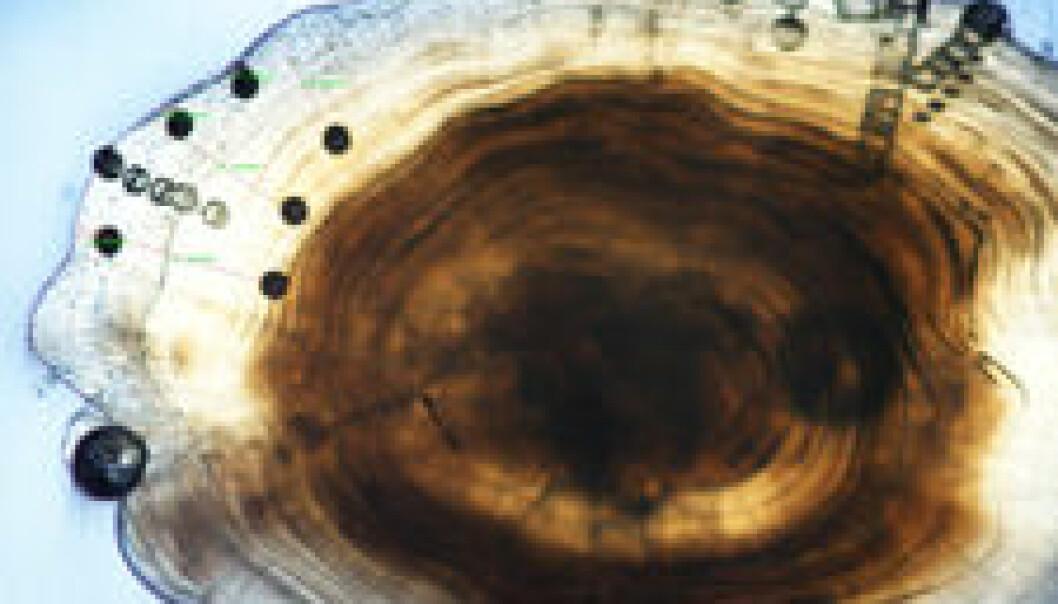 """""""Mikroskopbilde av ørestein. De svarte prikkene viser hvor det er tatt ut prøver for analyse."""""""