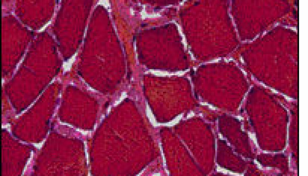 """""""Mikroskopbilde av mikrostrukturen i varmebehandlet kjøtt målt med FT-IR"""""""
