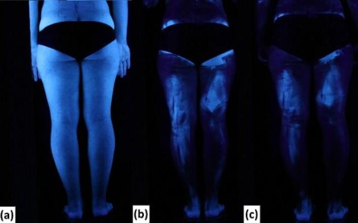 Her ser vi en av forsøksdeltakerne bakfra i blacklight før og etter at hun har smurt seg inn med solkrem. A: Ingen solkrem. B: Ett lag solkrem. C: Dobbelt lag solkrem. (Foto: Heerfordt et al. utgitt i PLoS ONE)