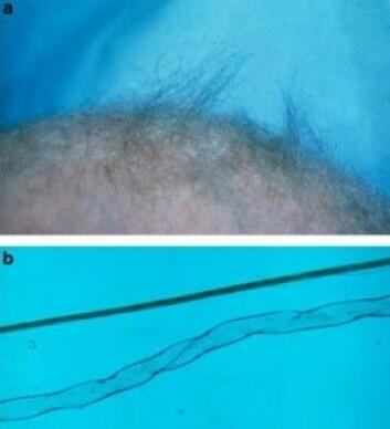 """A: Håret fra en pasient med Menkes sykdom som viser klassiske tegn på sykdommen. B: 100 ganger forstørrelse av henholdsvis sunt hår (øverst) og hår rammet av «kinky hair syndrome» (nederst). (Foto: E Reske-Nielsen, Rigshospitalet Glostrup, Tümer, Z <span class=""""amp"""">&amp;</span> Møller, LB, <a href=""""https://www.ncbi.nlm.nih.gov/pmc/articles/PMC2987322/#"""">Eur J Hum Genet</a>. 2010)"""