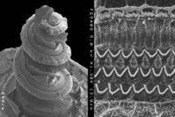 Det indre øret hos et marsvin. I konkylien er det ørsmå hårceller som responderer på visse lydfrekvenser, og sender beskjed videre til hjernen. (Foto: Dr. David Furness/Wellcome collection)
