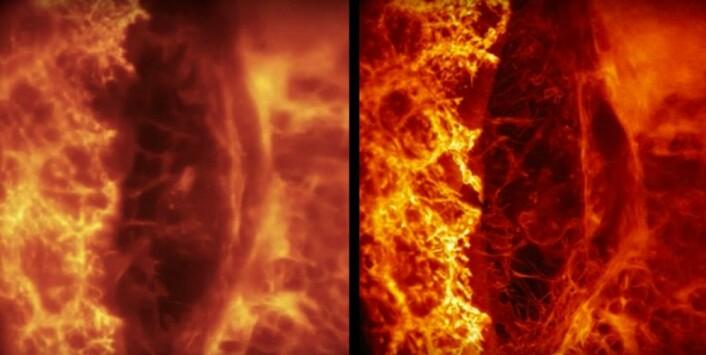 Bedre skarphet: Til venstre uten og til høyre med adaptiv optikk. Bildene viser endocytose – altså hvordan proteiner fraktes inn i en celle. (Foto: Fra YouTube-video publisert av HHMI Howard Hughes Medical Institute)