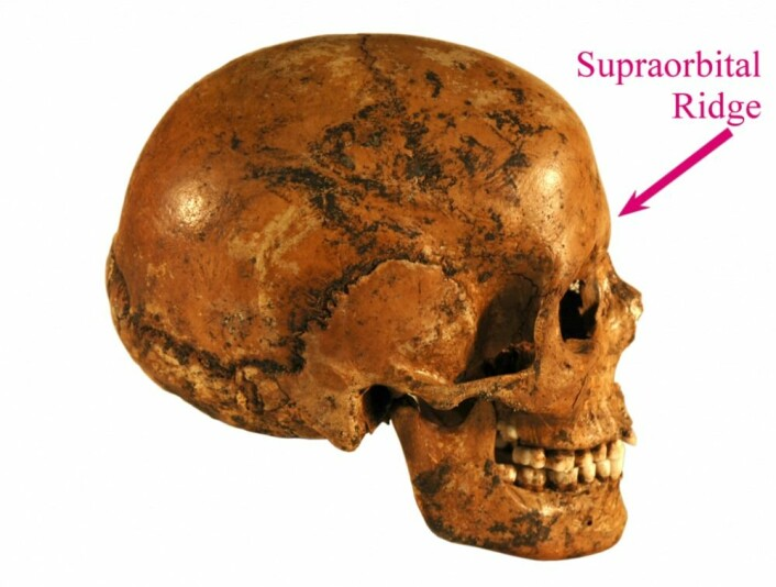 Dette er hodeskalle fra en moderne kvinne. Her er øyehulebroen ganske liten, sammenlignet med tidlige mennesker. (foto: Falbygdens museum/CC BY-SA 1.0)