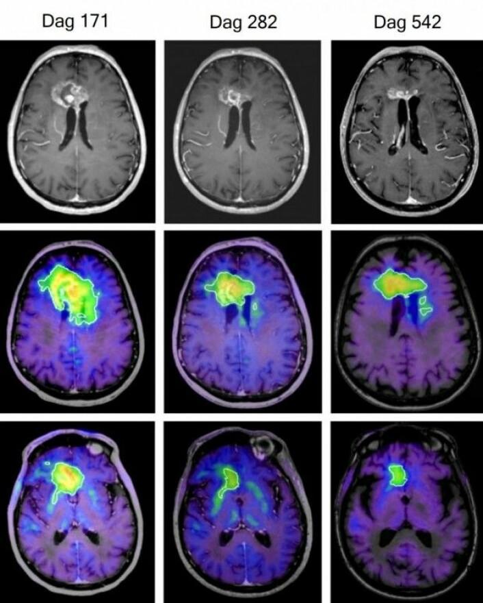 Under forsøket ble størrelsen på hjernesvulsten til en 76-åring mer enn halvert, viser disse hjerneskanningene tatt etter henholdsvis 171, 282 og 542 dager. De øverste bildene er fra MRI-skanninger, mens de fargede er fra FET-PET-skanninger. (Foto: Kirkin et al., Nature Communications)