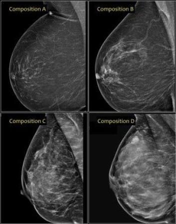 Fra venstre øverst fettrikt bryst som ser mørkt ut på mammografi (A) med lav risiko, via mellomtyper (B og C) til mest kjertelrikt, med stor grad av lyse partier (D). Det nederst til høyre har høyere risiko for kreft. (Foto: Radiology Assistant)