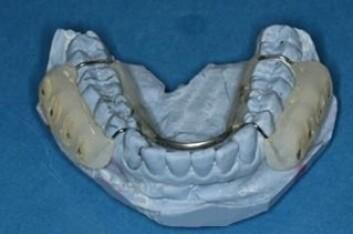 Platene med tannbiter på ble tilpasset til den frivillige sin munn. (Foto: Marte-Mari Uhlen)