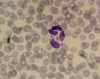 Forskerne kan finne Anaplasmose-bakterien ved å se på en viss type hvite blodceller i mikroskop. Slik ser det ut igjennom et lysmikroskop. (Foto: Snorre Stuen)