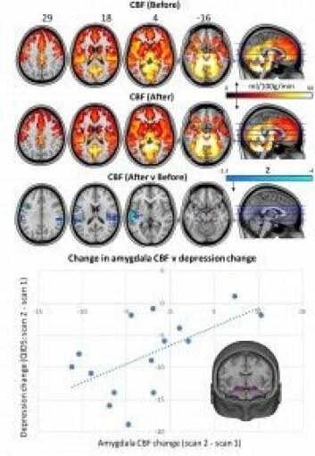 Bilder over blodgjennomstrømming i hjernen før behandling og etter en dags behandling. Diagrammet under viser endringer i hjernens amygdala der primitive følelser behandles og endringer i symptomer på depresjon. (Foto: Scientific Reports 7/2017)
