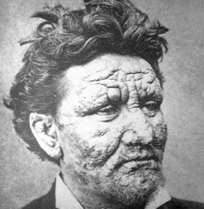 En ung mann med spedalskhet på slutten av 1800-tallet. (Bilde: Pierre Arents)