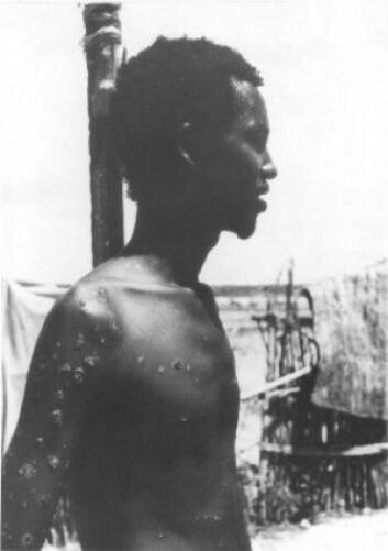 Ali Maow Maalin fra Merka, Somalia, siste menneske med naturlig koppeinfeksjon. Du kan se koppearrene på kroppen hans. (Foto: CDC / Verdens helseorganisasjon)