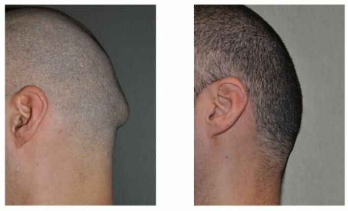 Et eksempel på hvordan en forvokst nakkeknokkel kan se ut. (Foto: exploreplasticsurgery.com)