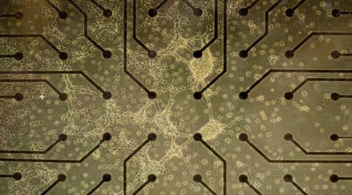 Mikroskopisk bilde av en åtte dager gammel nevrokultur som har vokst fram. Nevronettverket er laget fra menneskelige stamceller (iPSC). (Foto: NTNU)