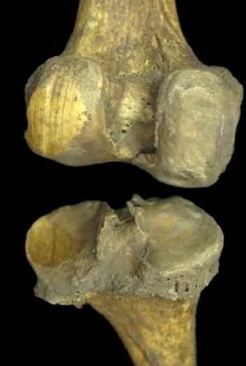 Bein fra en arkeologisk utgraving. Leddet har slitemerker fordi knoklene har gnisset sammen. (Foto: Heli Maijanen)