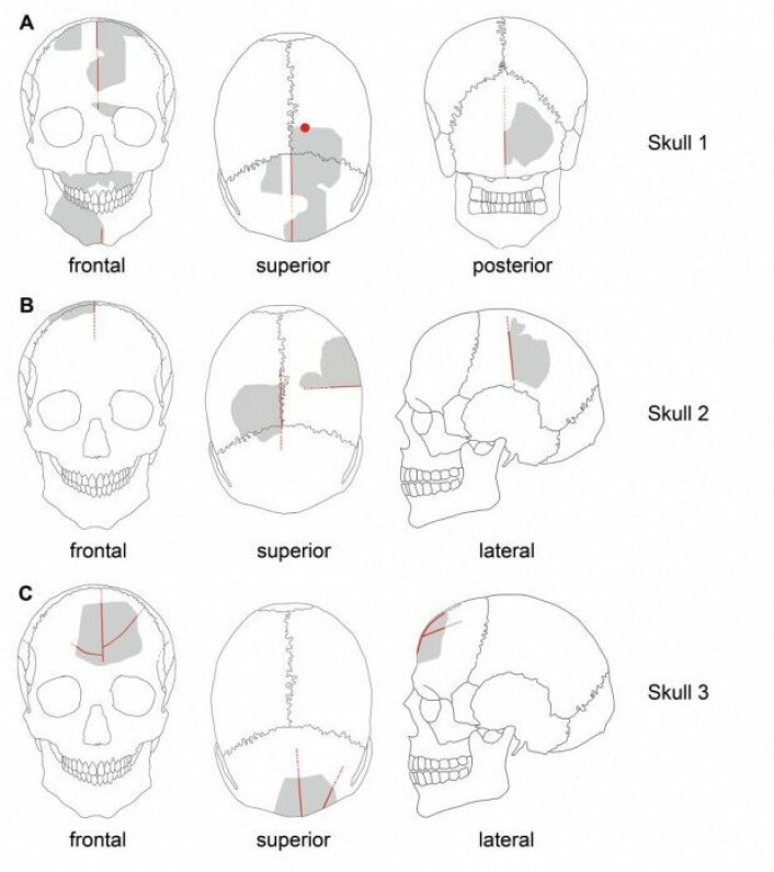 Her ser vi en illustrasjon av hvor de tre kraniene har blitt snittet og boret i. Snittsporene har angivelig blitt bruk til snorer som skulle holde kraniet samlet. (Illustrasjon: Julia Gresky, Juliane Haelm, DAI.)