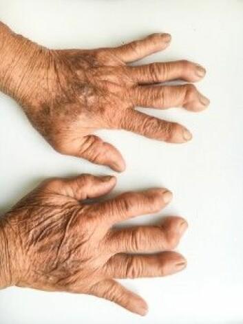 Leddgikt kan deformere både fingre og tær og gjøre det vanskeligere å bevege seg. (Foto: Shutterstock/NTB scanpix)