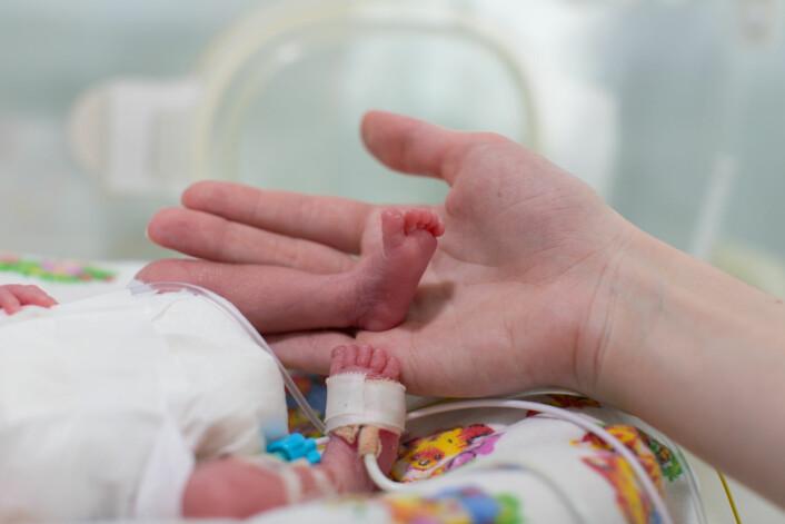 En baby født i uke 23 kan veie så lite som et halvt kilo. (Foto: Shutterstock/NTB scanpix)