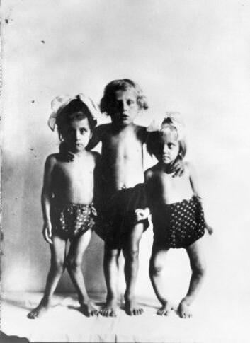 """Dette bildet er tatt i Wien mellom år 1920 og 1930 og viser tre barn med ulike stadier av rakitt. (Foto: ukjent / Wellcome Library, London / <a href=""""https://creativecommons.org/licenses/by/4.0/"""">CC BY SA 4.0</a>)"""