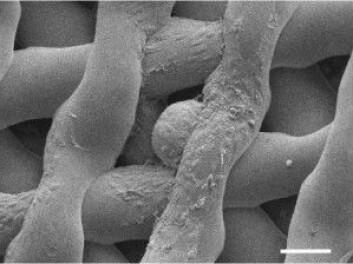 Et mikroskopisk foto av et umodent museegg som er omgitt av follikler etter å ha vært innsatt i den kunstige eggstokken i seks dager. (Foto: Northwestern University)