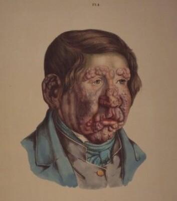 Illustrasjon fra J. L. Lostings lepraatlas. En 13 år gammel gut med fullt utviklede knuter i ansiktet. Han ble rammet av lepra som seksåring. (Gjengitt med tillatelse fra Lepramuseet St. Jørgens Hospital/Bymuseet i Bergen)