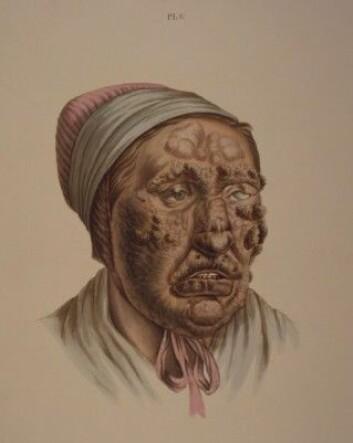 Illustrasjon fra J.L. Lostings lepraatlas. En 28 år gammel kvinne med knuter som har fått gråbrune skorper. (Gjengitt med tillatelse fra Lepramuseet St. Jørgens Hospital/Bymuseet i Bergen)