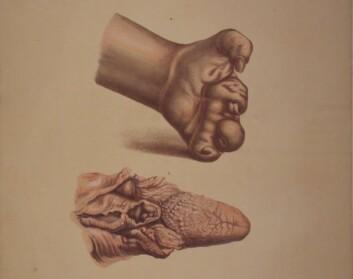Illustrasjon fra J.L. Lostings lepraatlas. En deformert hånd som følge av glatt lepra, mens vi nedenfor ser en tunge og deler av strupen, angrepet av knutete lepra.(Foto er gjengitt med tillatelse fra Lepramuseet St. Jørgens Hospital/Bymuseet i Bergen)